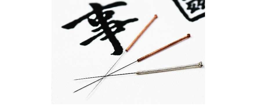 Acupuncture Anne Paré